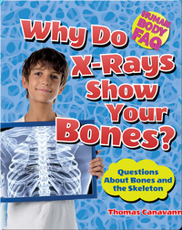 Why Do X-Rays Show Your Bones?: Questions About Bones and the Skeleton