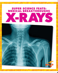 Medical Breakthroughs: X-Rays