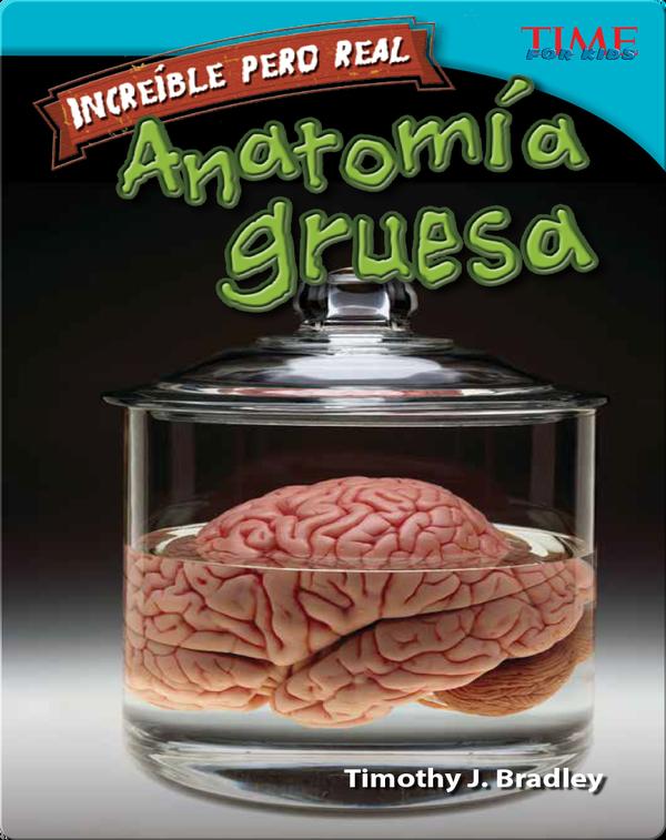 Increíble pero real: Anatomía gruesa (Strange but True: Gross Anatomy)