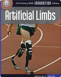 Innovation: Artificial Limbs