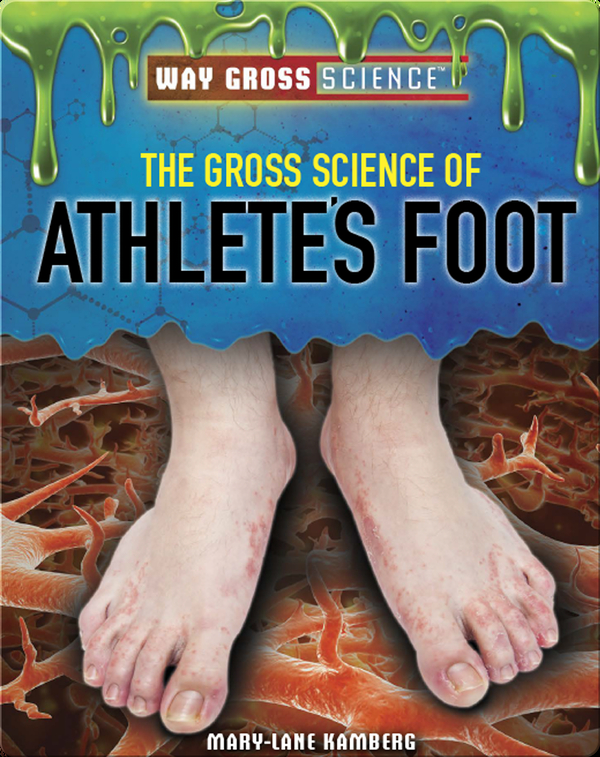The Gross Science of Athlete's Foot