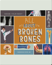 All About Broken Bones
