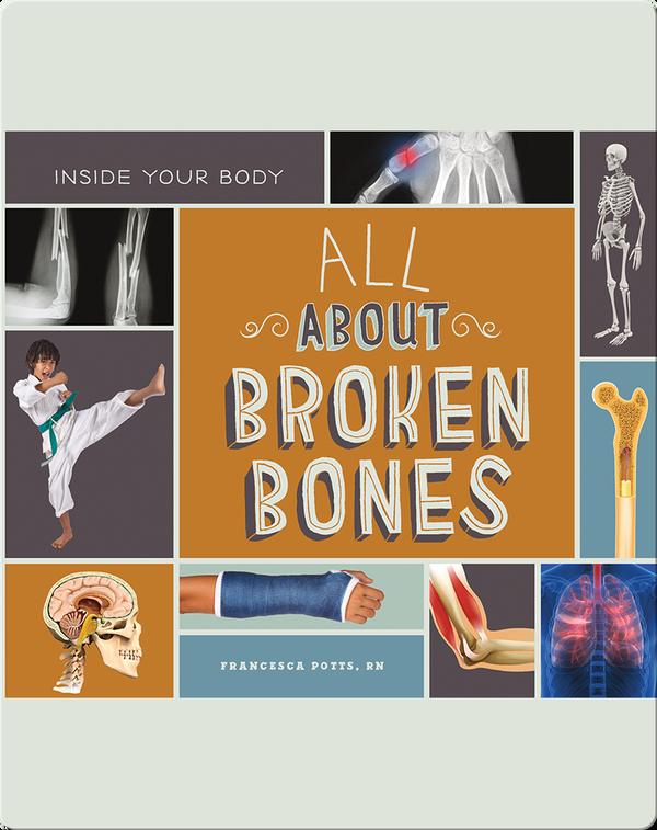 All About Broken Bones
